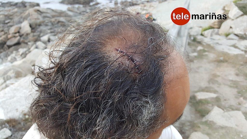 Un furtivo agrede con una raspa a un guardapesca de la Cofradía de Baiona